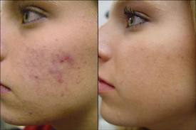 treatments of acne